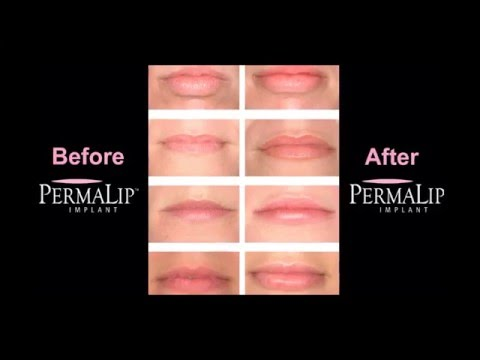 Before and After Permalip