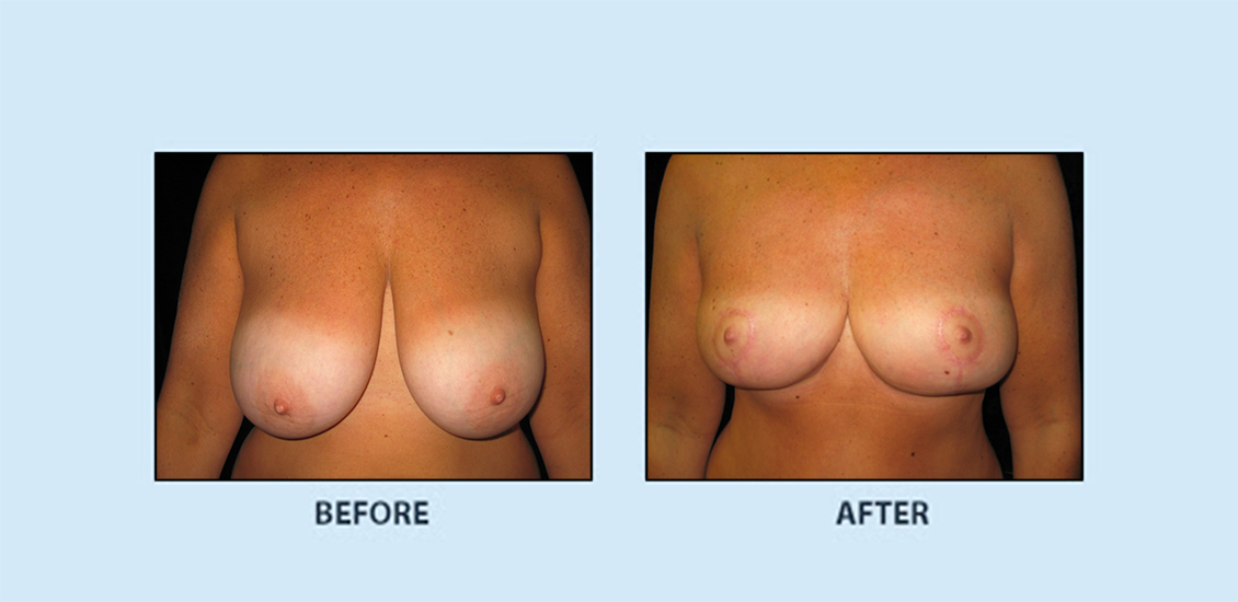 Breast Reduction1a