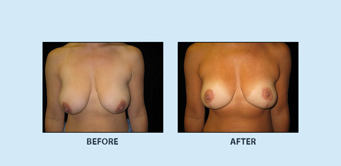 Breast Reduction2a