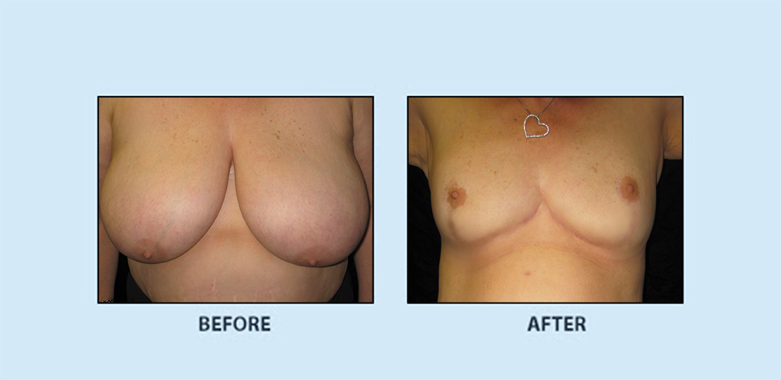 Breast Reduction3a