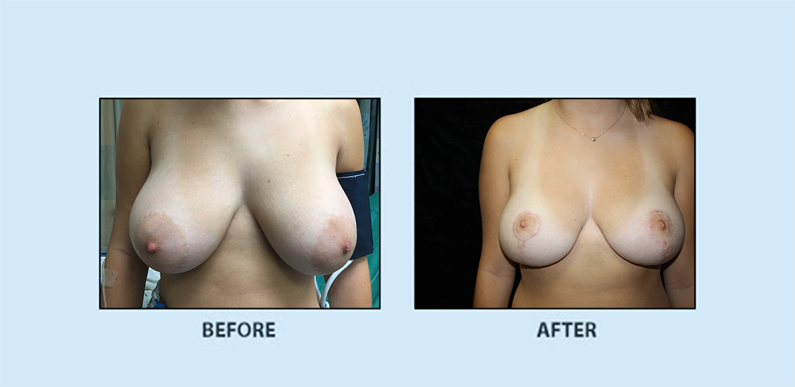 Breast Reduction4a